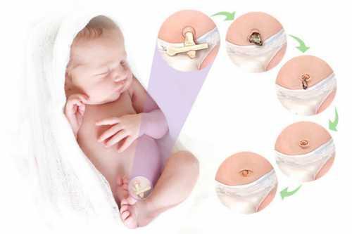 прыщики у новорождённого на лице: причины и способы избавления от них
